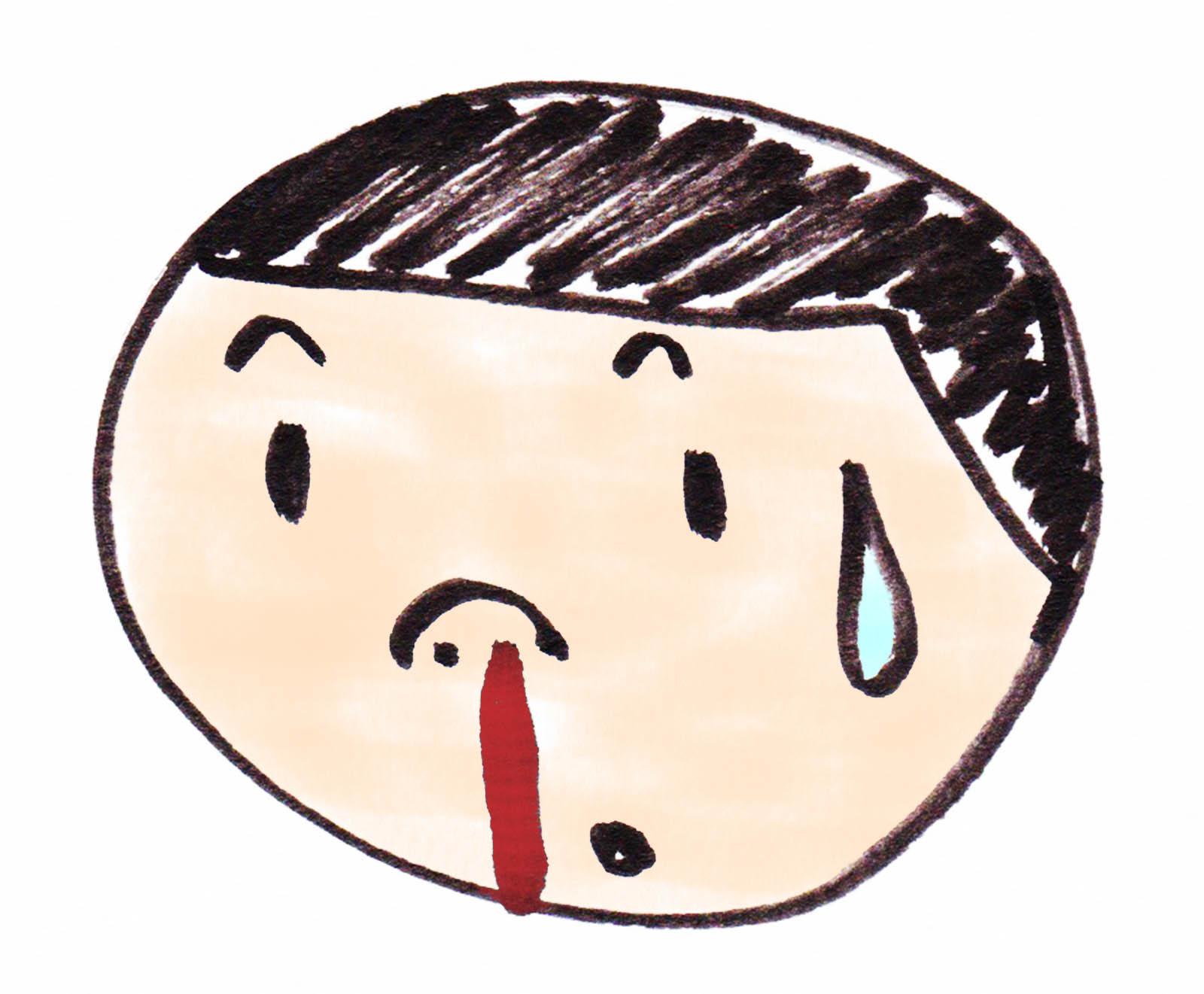ストレス 鼻血